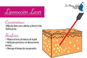 liposuccion-laser