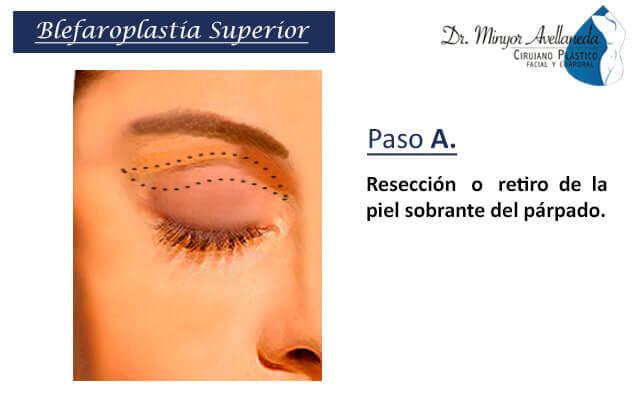 Liposucción tradicional en Bogotá - Dr. Minyor Avellaneda