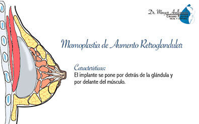 mamoplastia-de-aumento-retroglandular