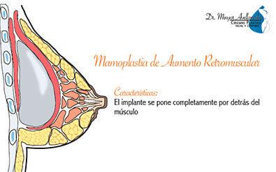 mamoplastia-de-aumento-retromuscular