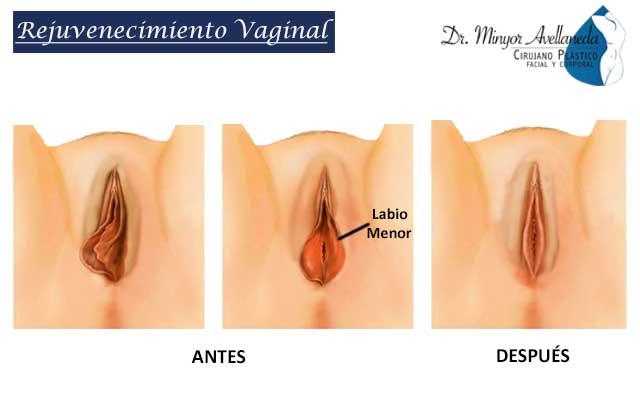 Rejuvenecimiento-vaginal
