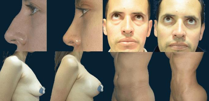 Antes y despues Dr. Avellaneda