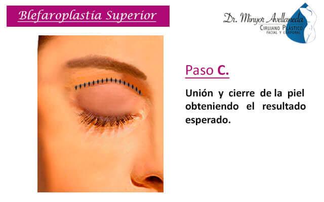 Liposucción láser (smartlipo) en Bogotá - Dr. Minyor Avellaneda